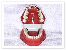 裏側からの舌側矯正
