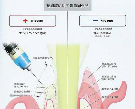 エムドゲイン療法(歯周組織再生療法)