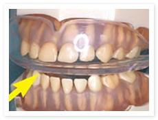 歯並び誘導
