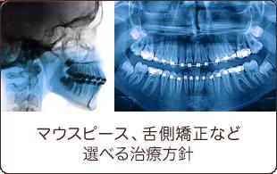 マウスピース、舌側矯正など選べる治療技術